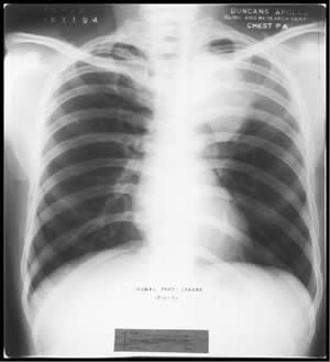 Chest X-ray dated 18.11.1994