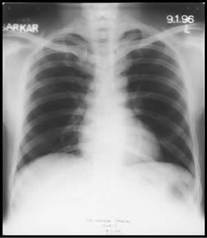 Chest X-ray dated 05.07.1995