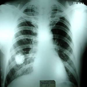 X-ray dated 22.09.2002